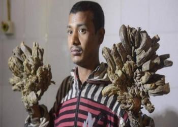 بنغلاديش.. الرجل الشجرة يعاود دخول المستشفى بعد تدهور حالته