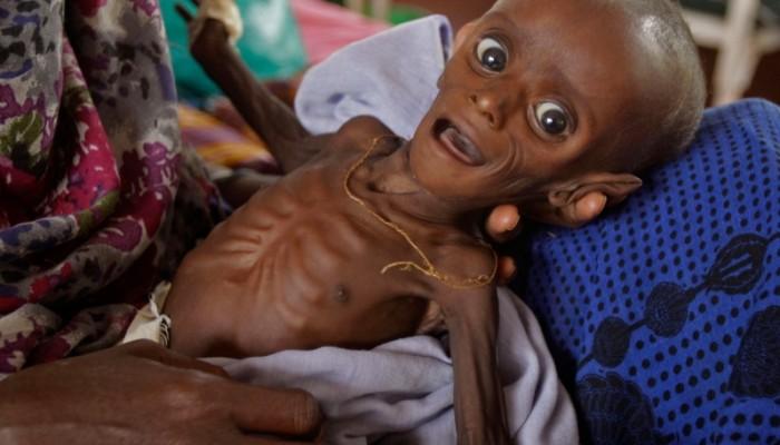 وزيرة هولندية: نصف سكان العالم سيعانون من سوء التغذية بحلول عام 2050