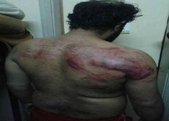 البحرين.. حقوق الإنسان تتردى ولا مساحة للمعارضة