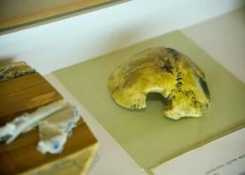 عرض جزء من جمجمة هتلر بمعرض روسي
