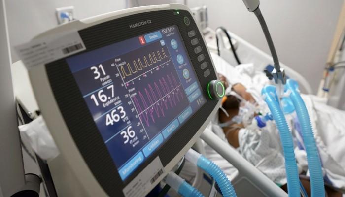 علماء يكتشفون نشاطا في الدماغ يتنبأ بمتلازمة القلب المكسور